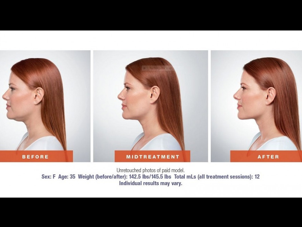 The kybella procedure at Vivid